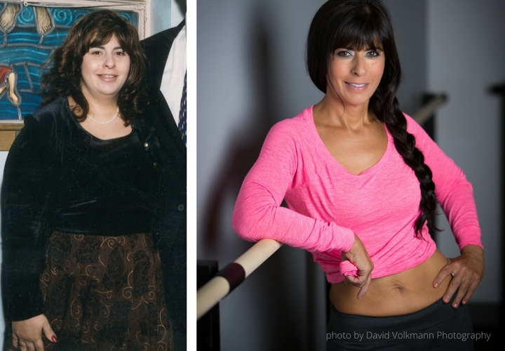 Charlene Bazarian Before and After